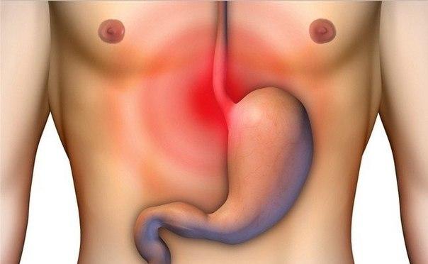 ИЗЖОГА. ПРИЧИНЫ, ЛЕЧЕНИЕ, ДИЕТА. Изжога – ощущение жжения, преимущественно в нижнем отделе пищевода, обусловленное забрасыванием кислого желудочного содержимого в пищевод. Причины изжоги – повышенная кислотность желудка, реже – особая чувствительность слизистой оболочки пищевода и желудка при пониженной кислотности. Часто изжога сопровождается заболеваниями желудка, но может возникать и при нервно-психических расстройствах после приема пищи. Симптомы изжоги. Нередко изжога сочетается с…